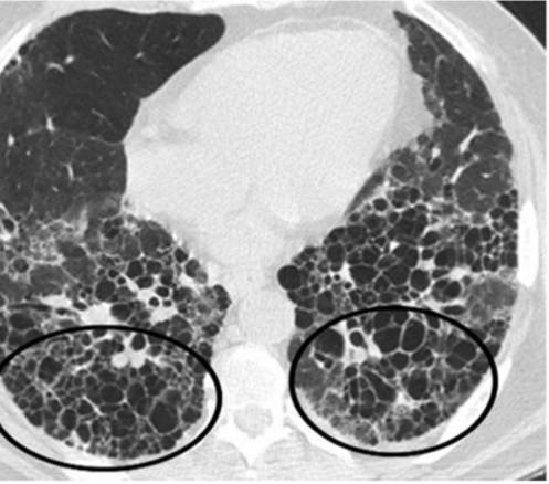 SSc-ILD trên HRCT (Nguồn: Ahuja J., Arora D., Kanne J.P., et al. (2016). Imaging of Pulmonary Manifestations of Connective Tissue Diseases. Radiol Clin North Am, 54, 1015-1031)
